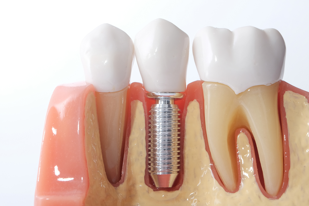 Take help of professional periodontist to protect yourself from oral diseases