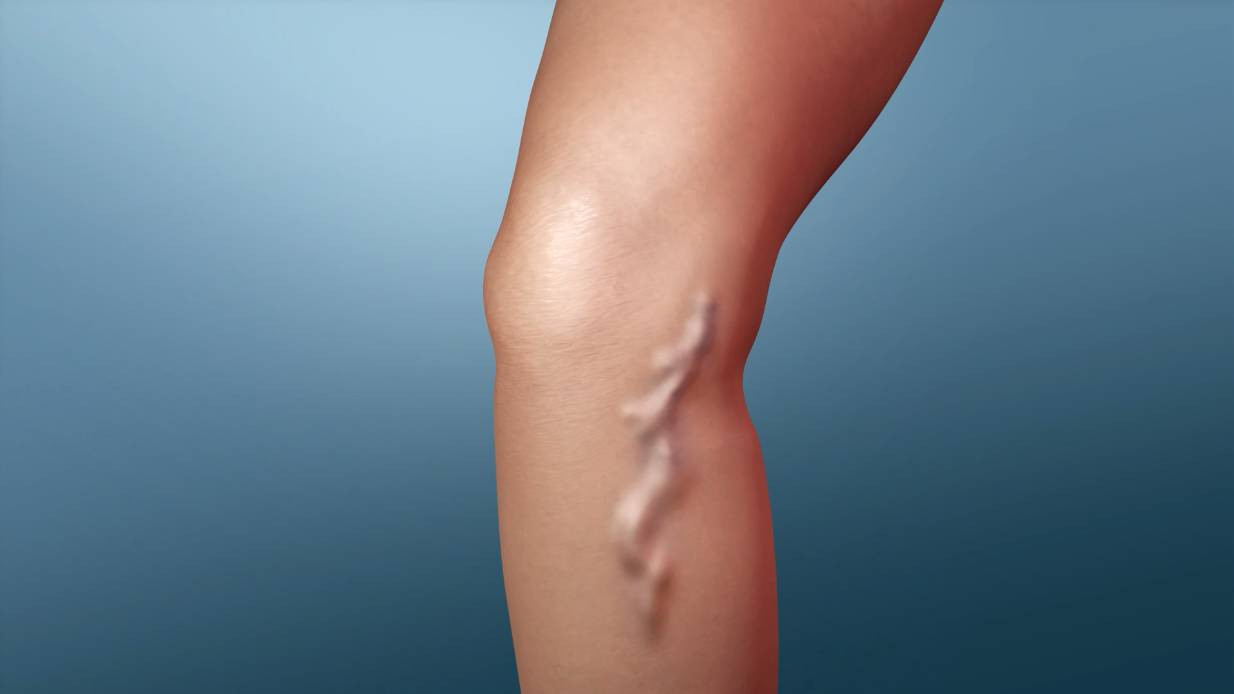Do Varicose Veins Require Surgery?